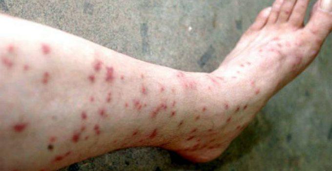 Sand Flea Bites on Humans Symptoms and Treatment