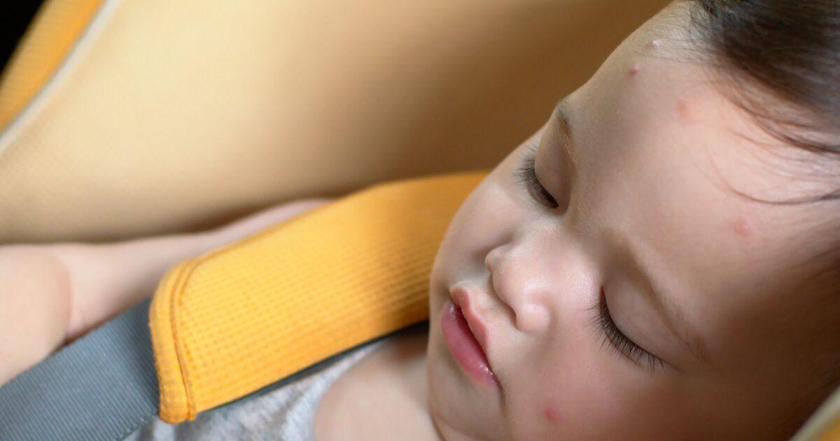 Flea Bites On Babies